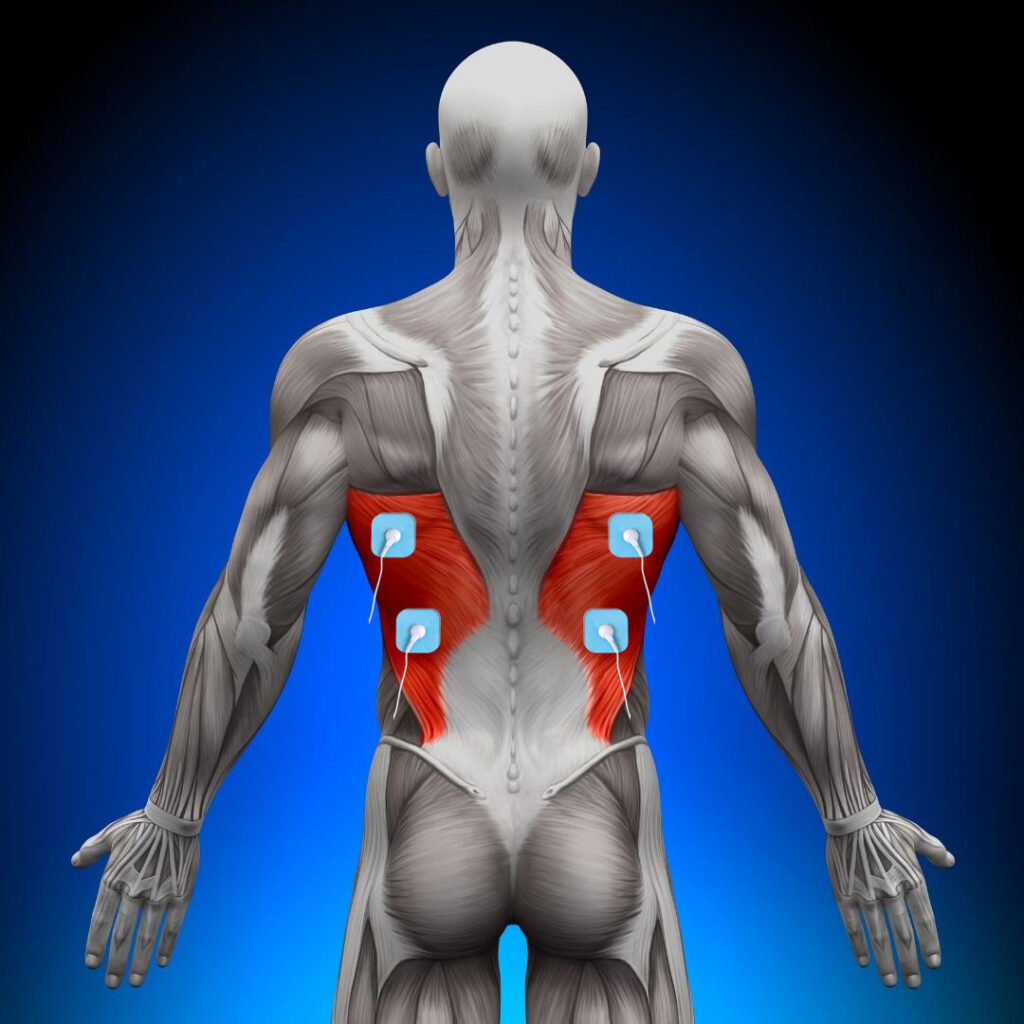 como colocar los electrodos en la espalda