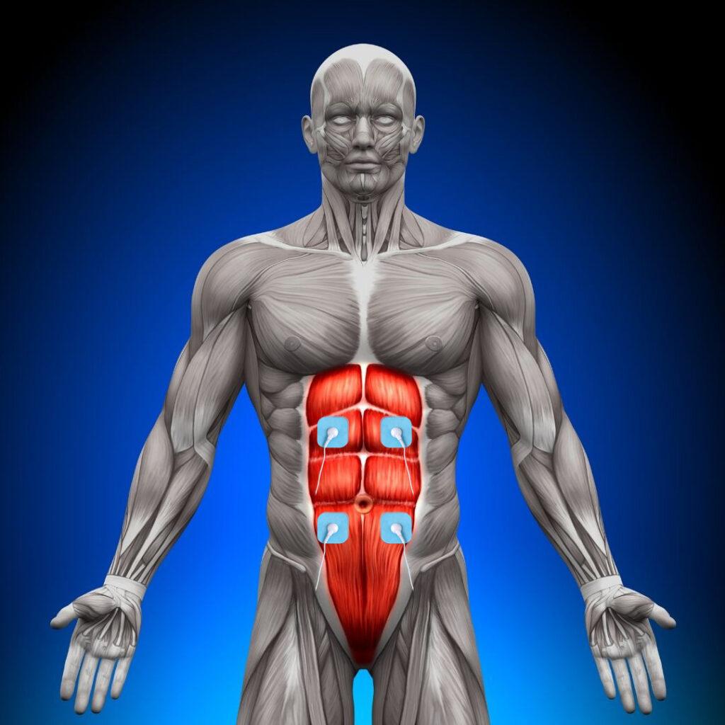 como colocar los electrodos en las abdominales