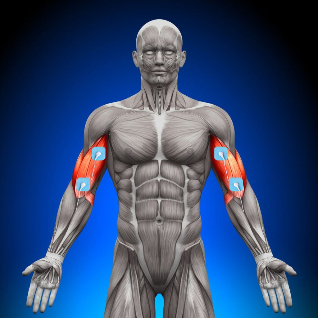 dónde colocar los electrodos en el biceps