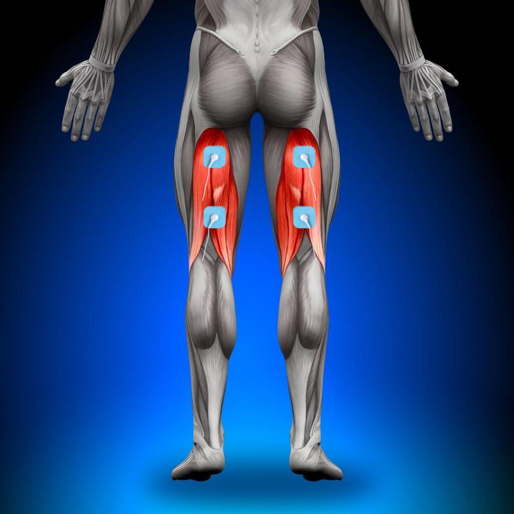 dónde colocar los electrodos en el biceps femoral