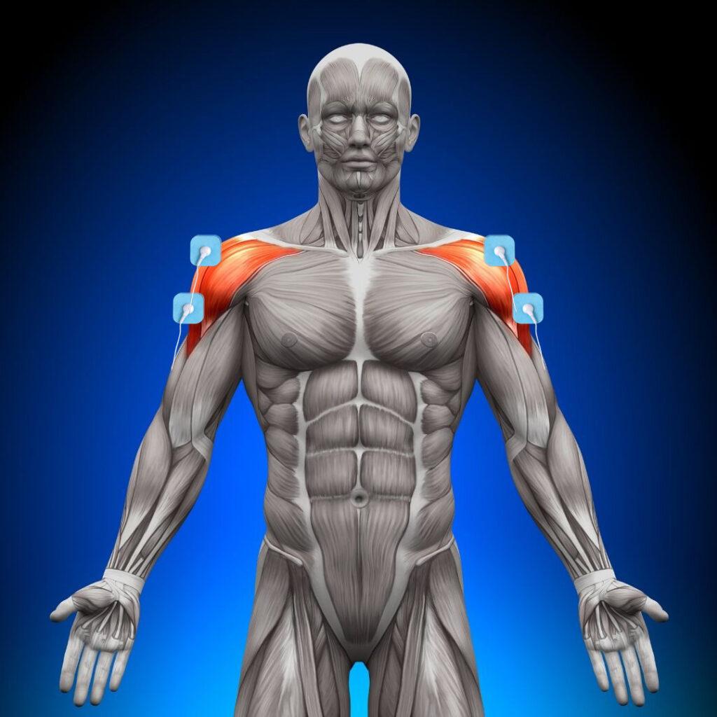 dónde colocar los electrodos en el hombro